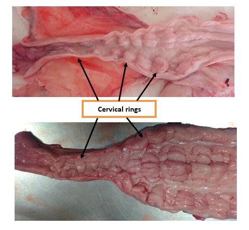 Cervical rings